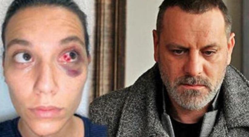 Ozan Güven'e mahkemeden büyük şok!