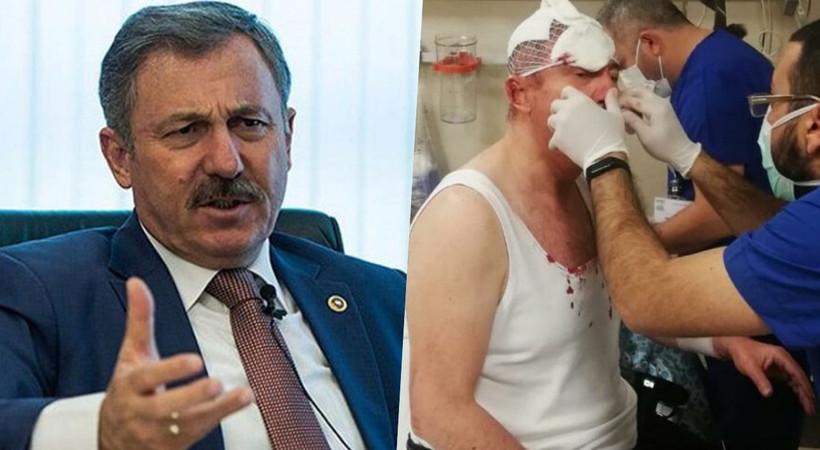 Selçuk Özdağ'a saldırı davası: Yaralama değil öldürmeye teşebbüs