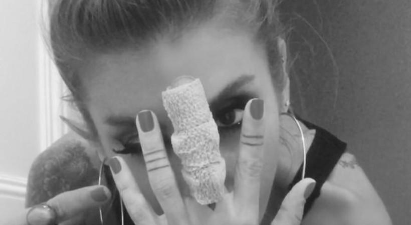 İrem Derici'nin kırılan parmağıyla ilgili ilginç detay
