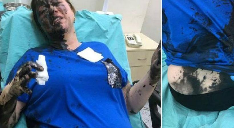 İş kadınını darp edip, yanıcı madde döken zanlı tutuklandı!