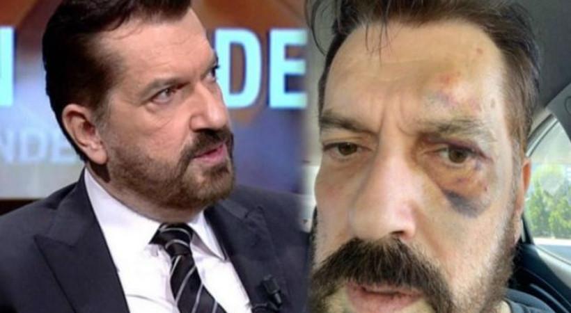 SONAR Araştırma Şirketi'nin sahibi Hakan Bayrakçı'ya saldırı