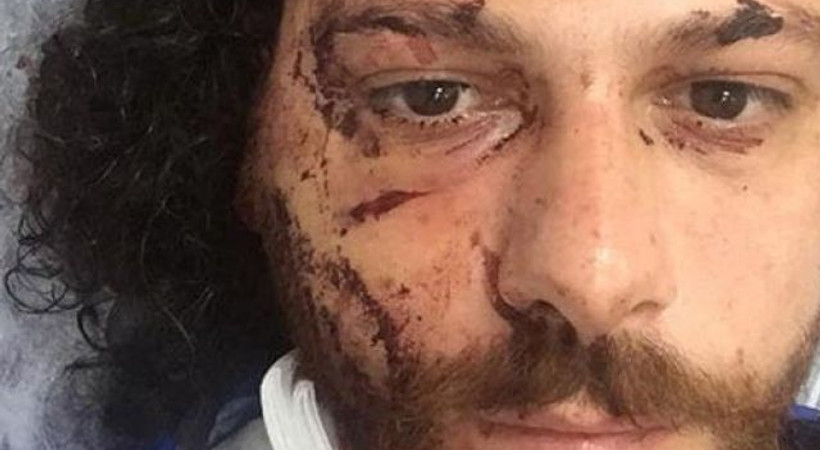 Ünlü oyuncuyu hastanelik oluncaya kadar dövdüler!