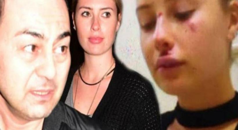 Serdar Ortaç'ın eşiyle ilgili bomba iddia: Kaza değil, darp edildi!