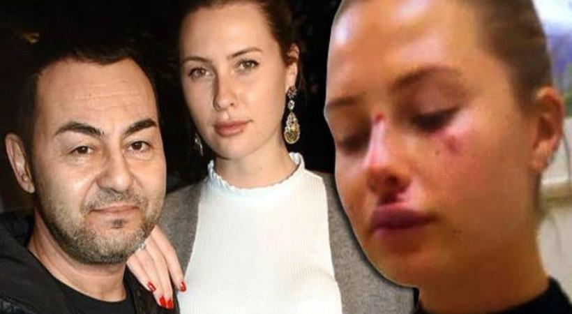 Serdar Ortaç'tan açıklama geldi! 'Karısı darp edildi' diyorlarmış...