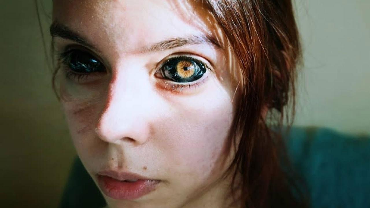 Gözlerine dövme yaptıran genç kadın kör oldu