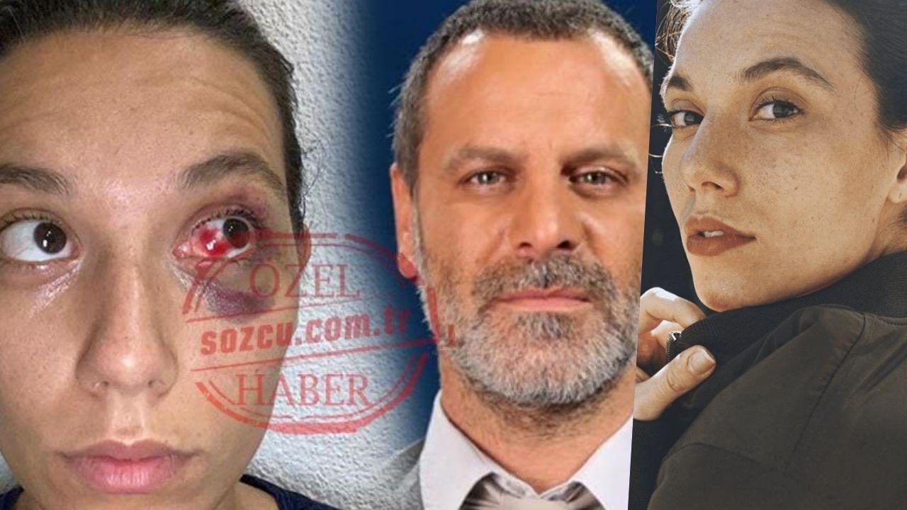 Ozan Güven'den şiddet gördüğünü iddia eden Deniz Bulutsuz'un adli tıp raporu ortaya çıktı!
