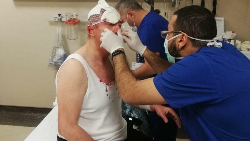 Gelecek Partisi Genel Başkan Yardımcısı Selçuk Özdağ'a silahlı saldırı!