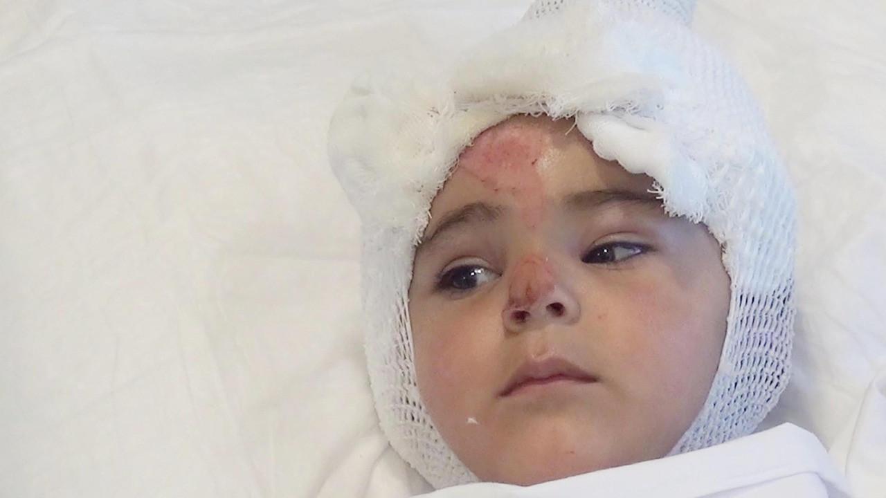 Tandıra düşen 2 yaşındaki Eylül ağır yaralandı